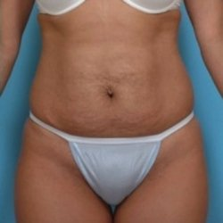 Manhattan abdominoplasty before 1